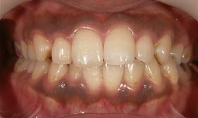 黒く変色した歯茎